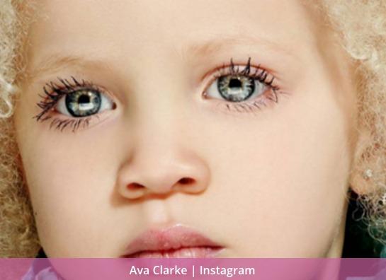 la pequena albina negra 1
