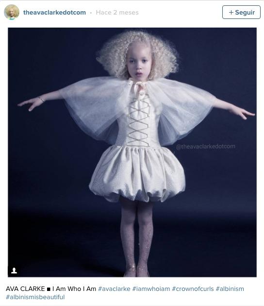 la pequena albina negra 10