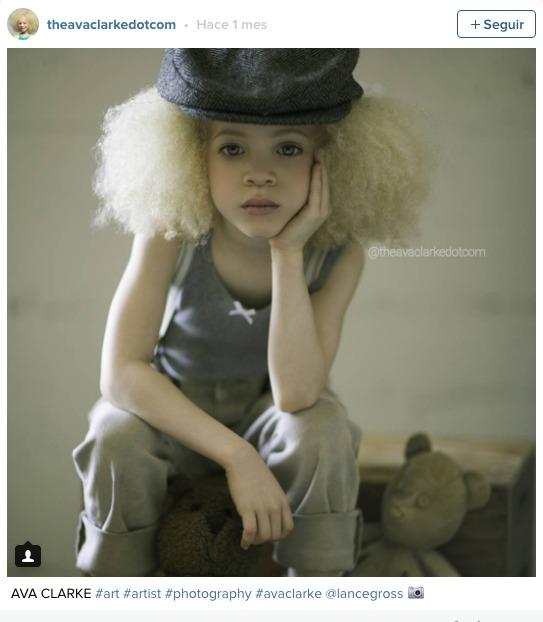 la pequena albina negra 5